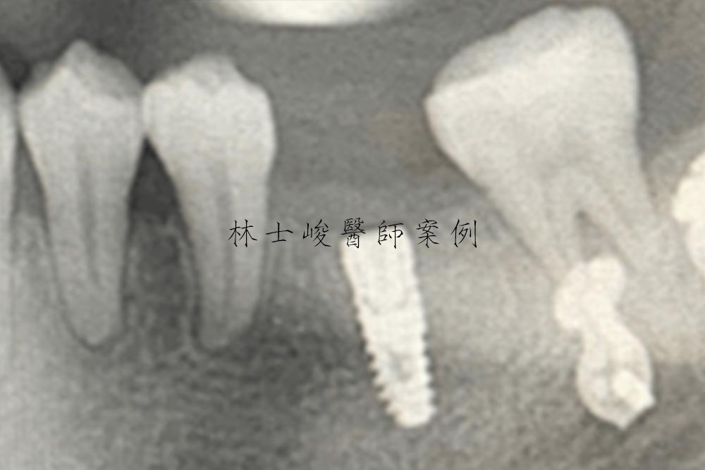 台北牙醫-植牙推薦-補骨-補牙肉-牙周病