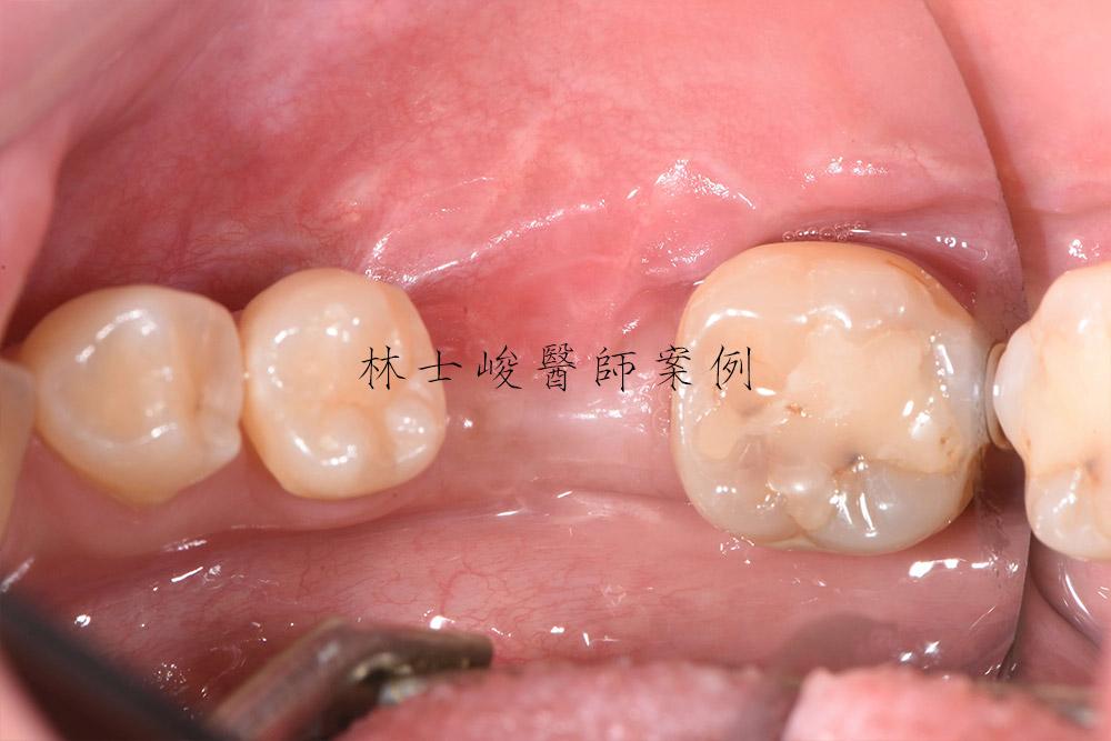 台北牙醫-植牙推薦-補骨-補牙