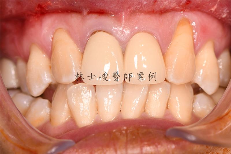 【牙齦萎縮治療Q&A】牙齦萎縮可以恢復嗎?我又該如何避免牙齦萎縮呢?
