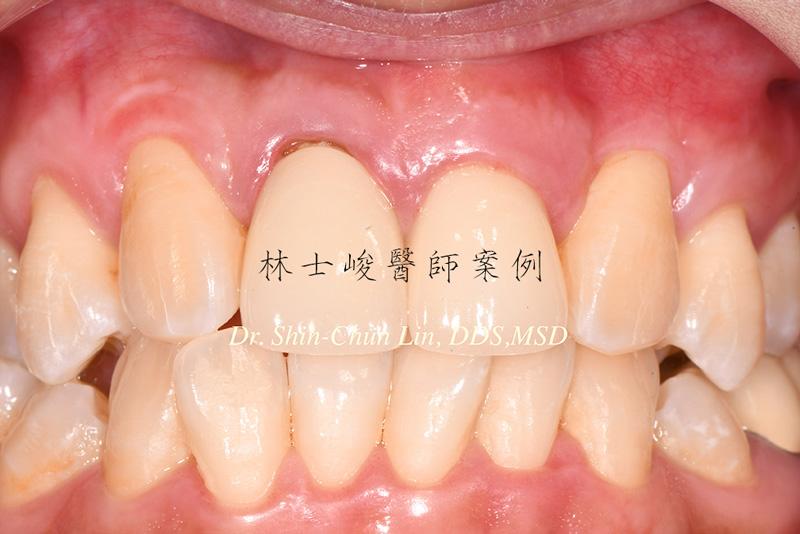 牙根覆蓋術-治療後