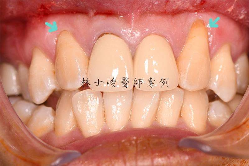 牙根覆蓋術-治療前
