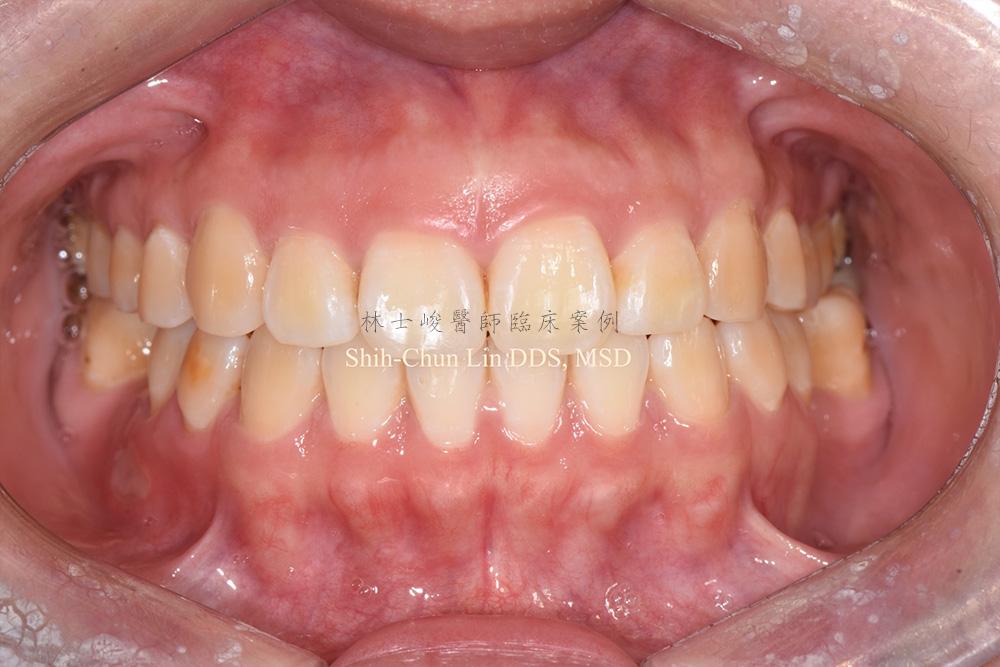 牙冠增長術實際案例01-1