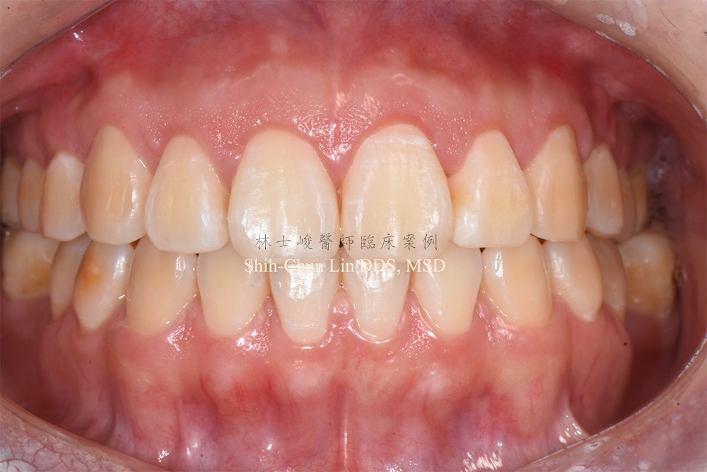 牙冠增長術實際案例02-1