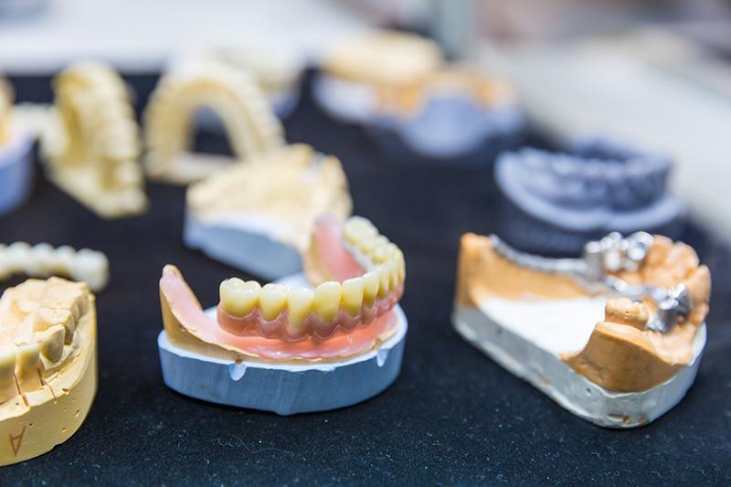 降低植牙風險,提高植牙成功的關鍵之一:鼻竇增高術