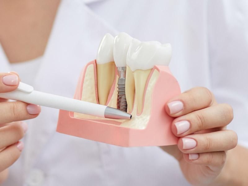 植牙失敗如何補救?讓專業醫師來告訴你