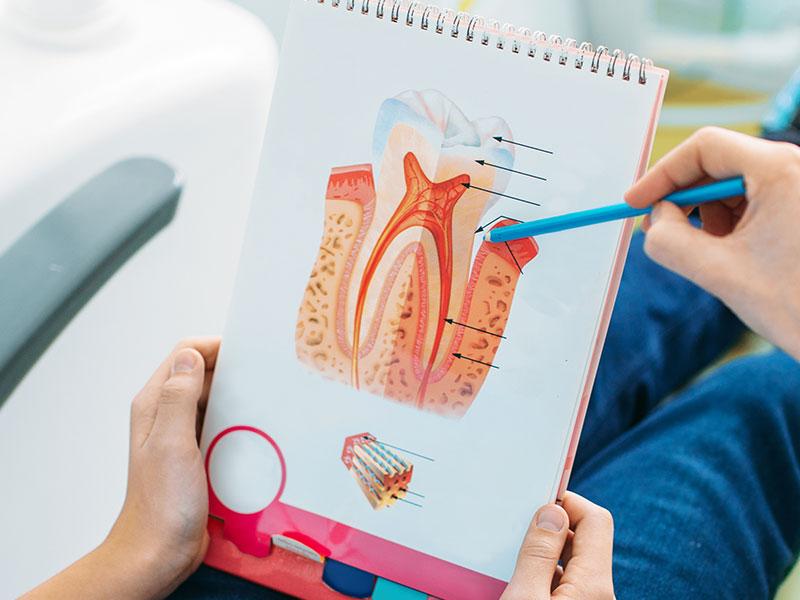 牙周病症狀知多少?牙周病會好嗎?治療牙周病的關鍵因素