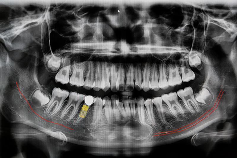 什麼是人工植牙?植牙副作用、優缺點、過程等深度分析