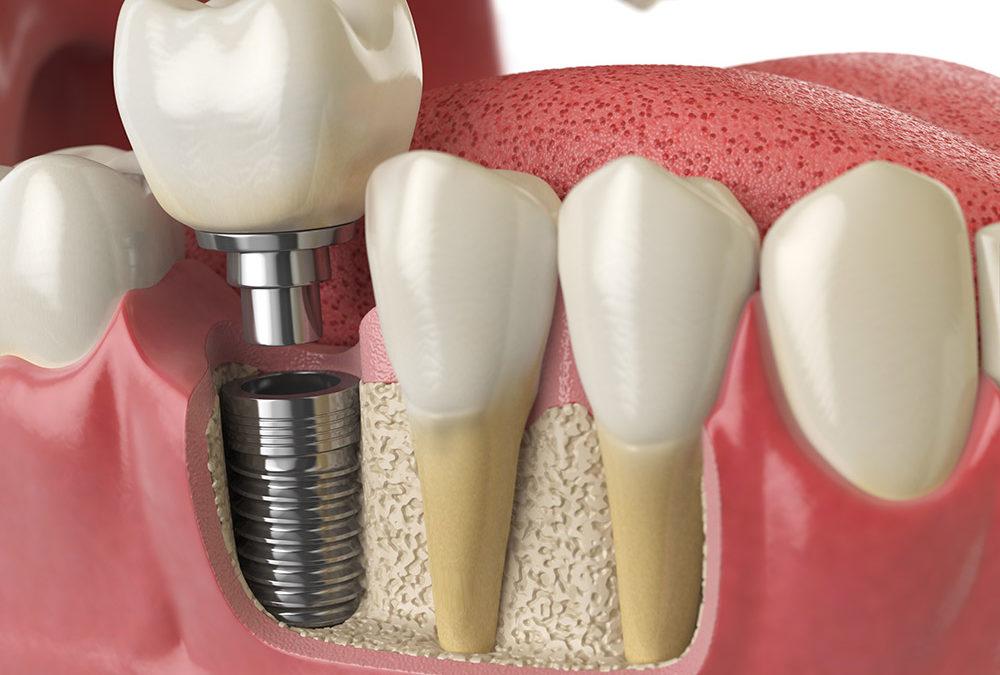 植牙第二階段會痛嗎?植牙第二次手術說明