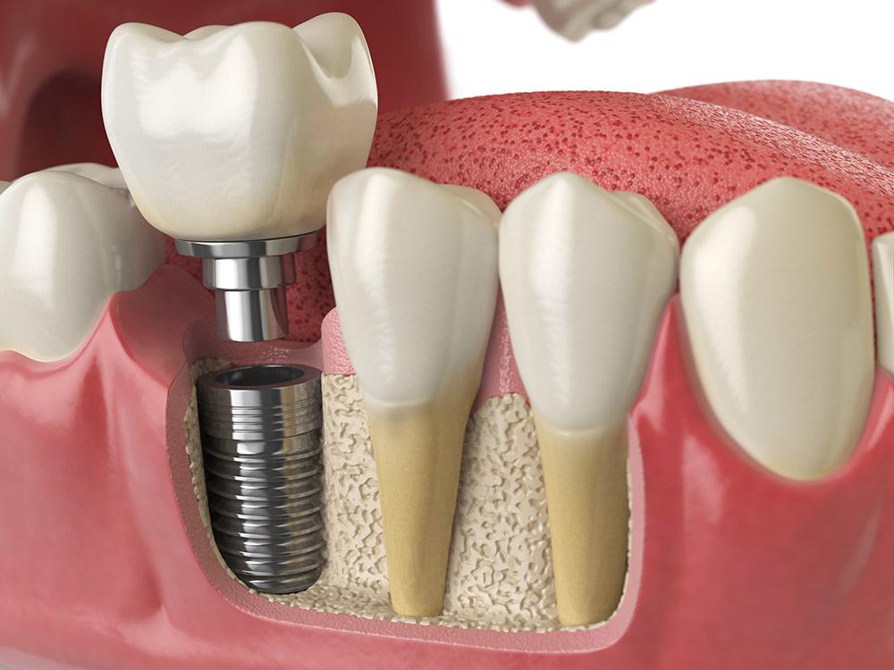 臼齒拔掉一定要植牙嗎?臼齒植牙費用怎麼算?
